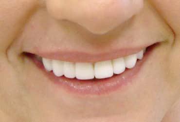 dental crowns, dental bridges, porcelain veneers