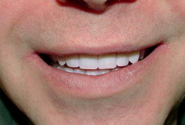 dentures, dental implants