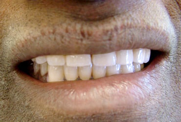 dentures, porcelain crowns