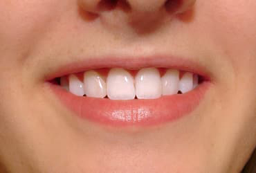 orthodontic, composite veneers