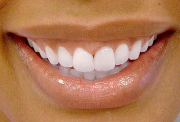 orthodontics, veneers, gum recontouring