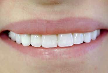 porcelain veneers, dental bridges, dental crowns
