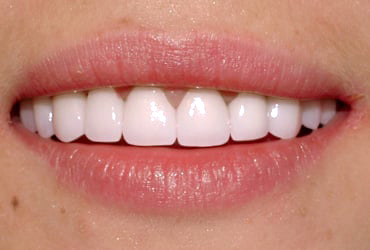 porcelain veneers, bridges, gum recontouring