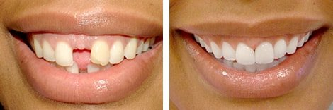 Smile Makeover Before & After At Bloor West Smiles