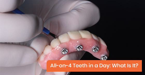 All-on-4 Teeth In A Day: What Is It?