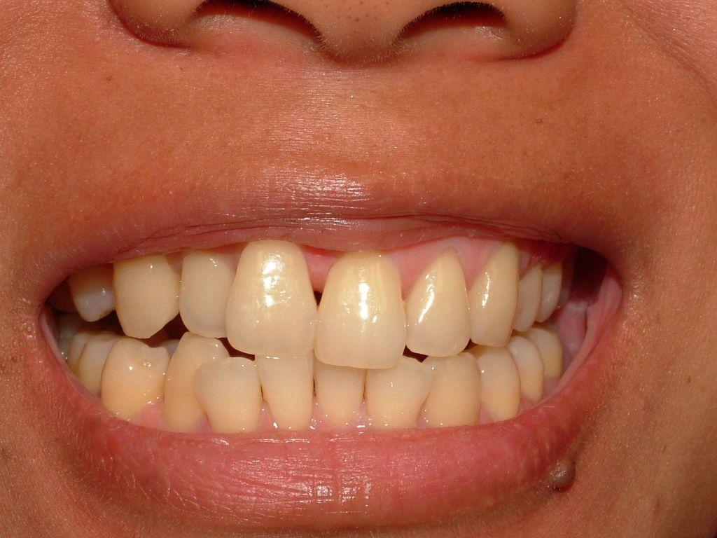orthodontic, composite veneers