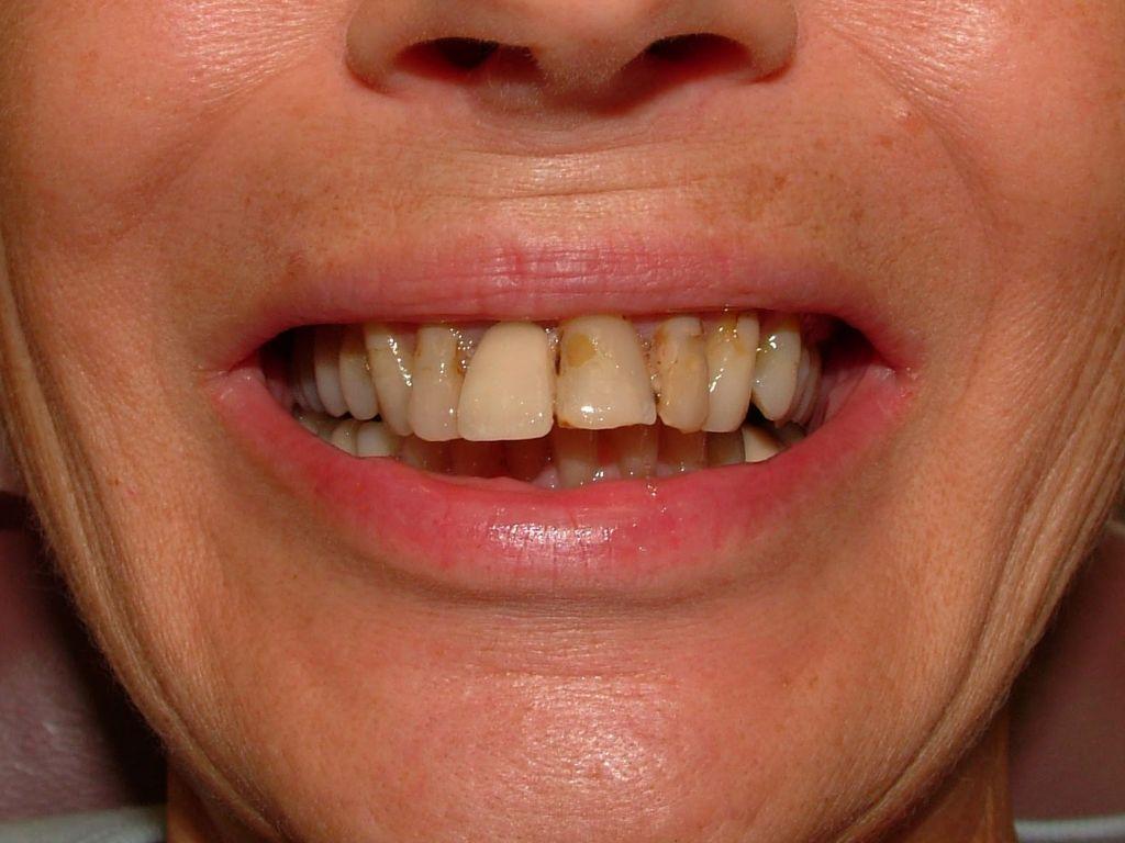 porcelain crowns, periodontal surgery