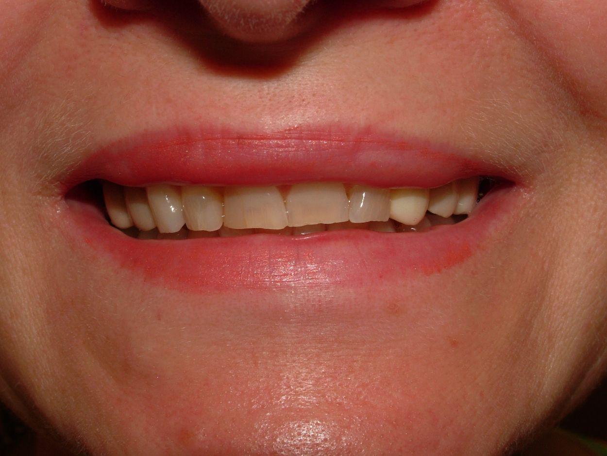 porcelain veneers, dental bridges, dental crowns