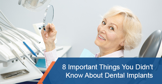 8 important things you didn't know about dental implants