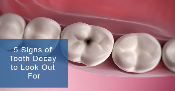 5 Signs of Tooth Decay to Look Out For