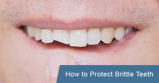 How to Protect Brittle Teeth